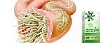 Средство Antiparasitus от паразитов.